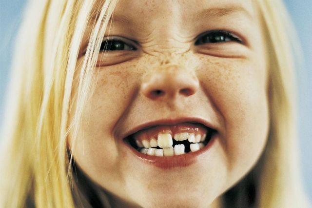I denti da latte serve tanta cura